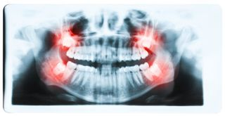 Xray of mouth, bright red highlights of wisdom teeth on each side of mouth