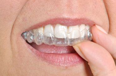 close up of the woman putting invisalign