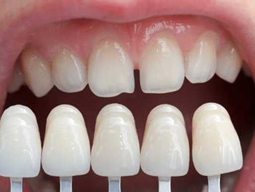 Comparing Veneers with the Kid's uneven teeths