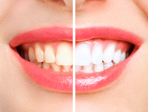 woman teeth comparison before and after whitening