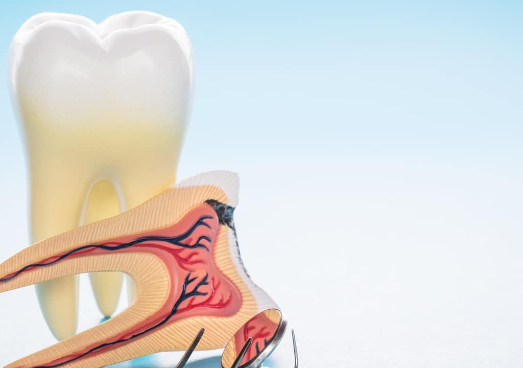 Representation of root canal with instrument