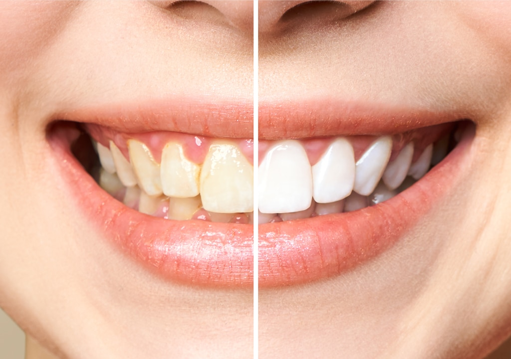 comparison between before and after teeth whitening